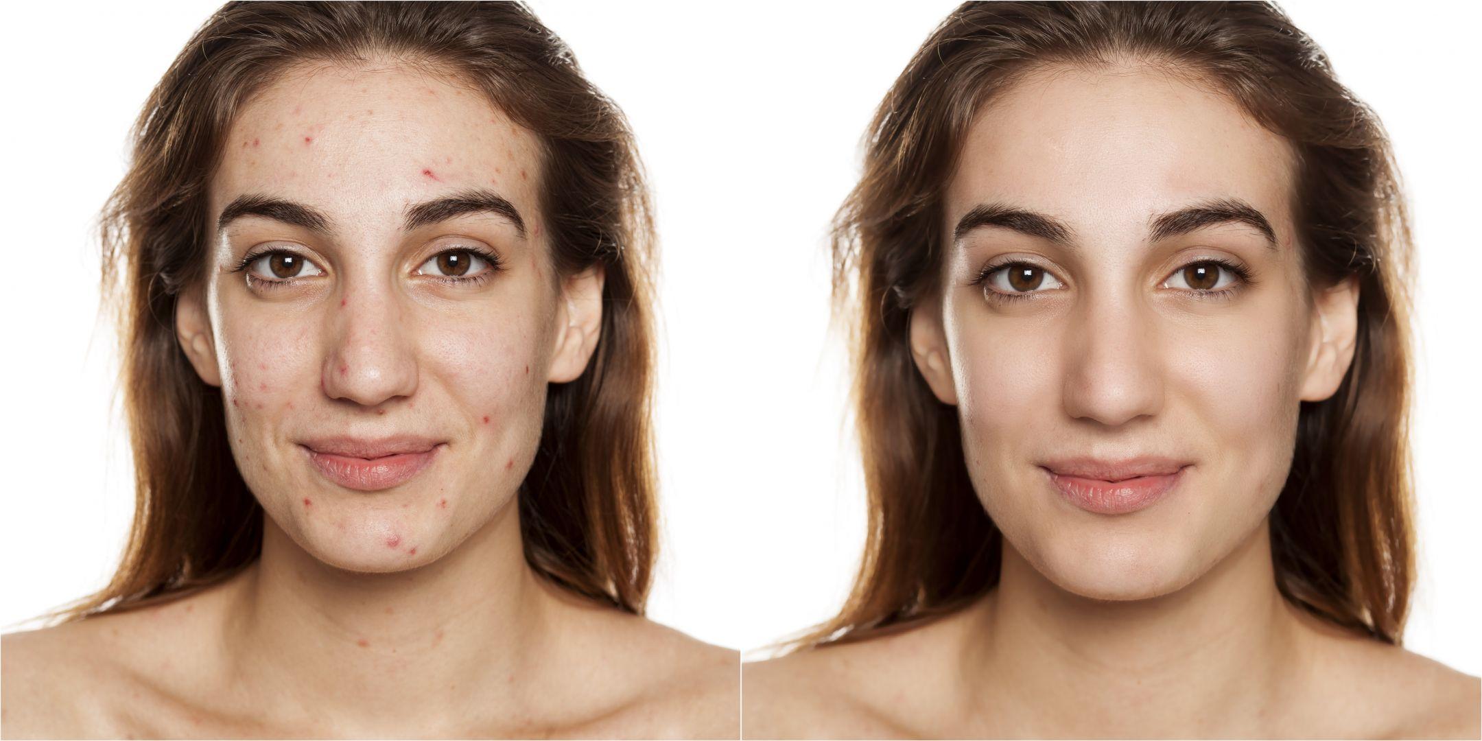 Skin Smoothing Filter